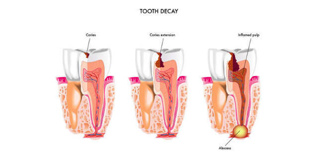 new-tooth-decay-treatment